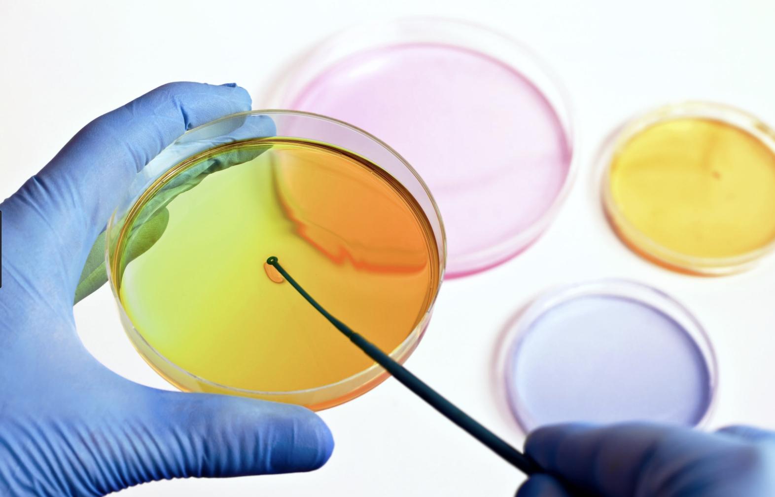 REACH: persistenza, bioaccumulabilità e tossicità delle sostanze
